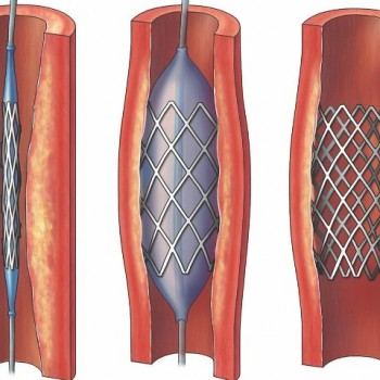 dat-stent